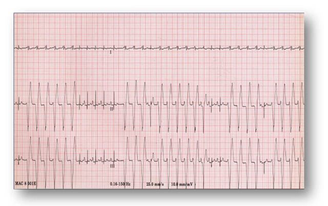 elettrocardiogramma-cane